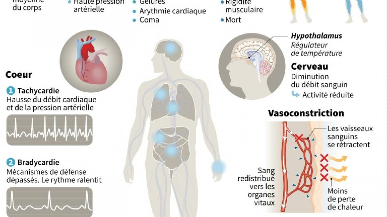 Virus, hypothermies La vague de froid et son impact sur
