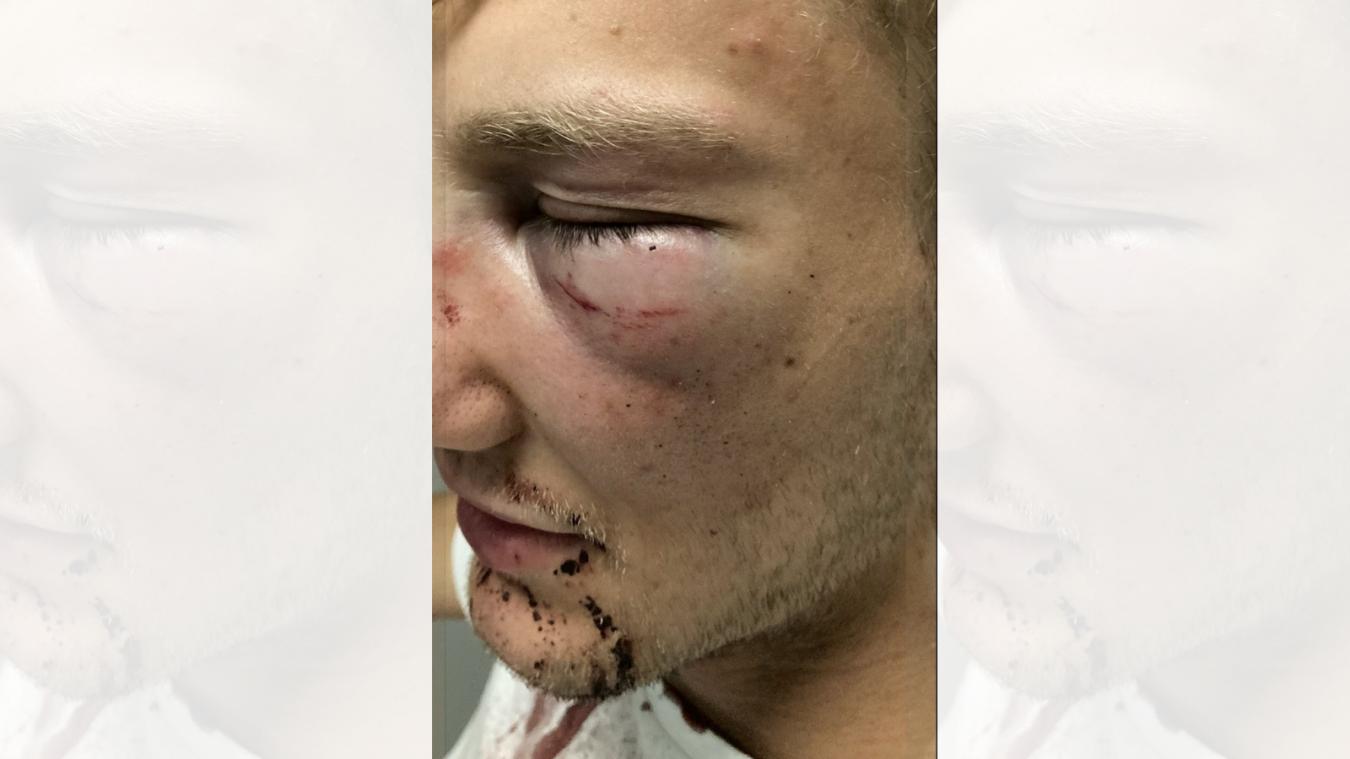 Un jeune homme violemment agressé à Lille: « Si je me prends un deuxième coup, je suis mort »